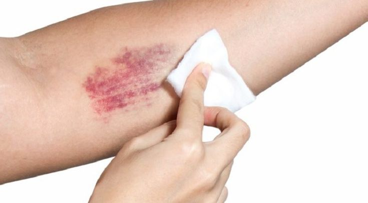 8 NATURAL REMEDIES FOR HEALING A BRUISE FAST!Cheryl Wheeler