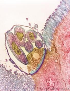 Cryptosporidium protozoa