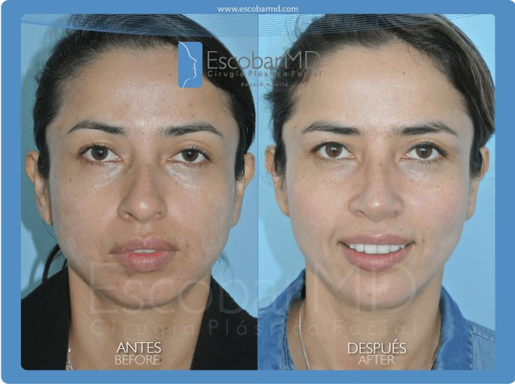 antes después  rinoplastia mentoplastia bichectomía Bogotá www.escobarmd.com / Before and after Rhinoplasty, mentoplasty and cheeks surgery (buccal fat removal) in Bogota, Colombia http://www.escobarmd.com/en/procedures/nose-surgery.html