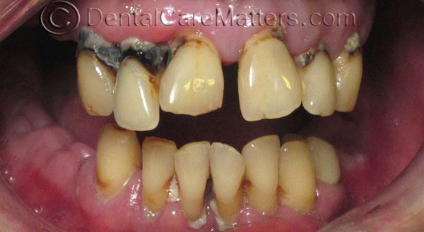 severe smokers teeth. Someone who hasn't brushed either rotting roots, and maybe mouth cancer.
