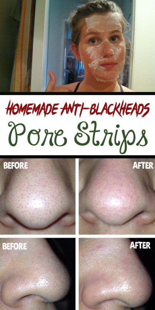 Homemade Anti-blackheads Pore Strips