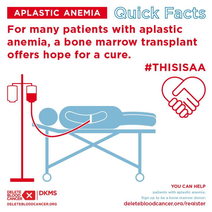 Did you know that a bone marrow transplant is the best shot for patients suffering from aplastic anemia? #ThisIsAA