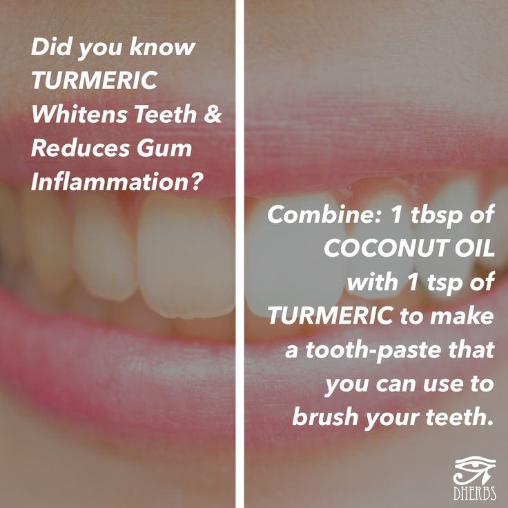 Did you know that Turmeric is a powerful tooth whitener and reduces gum inflammation?