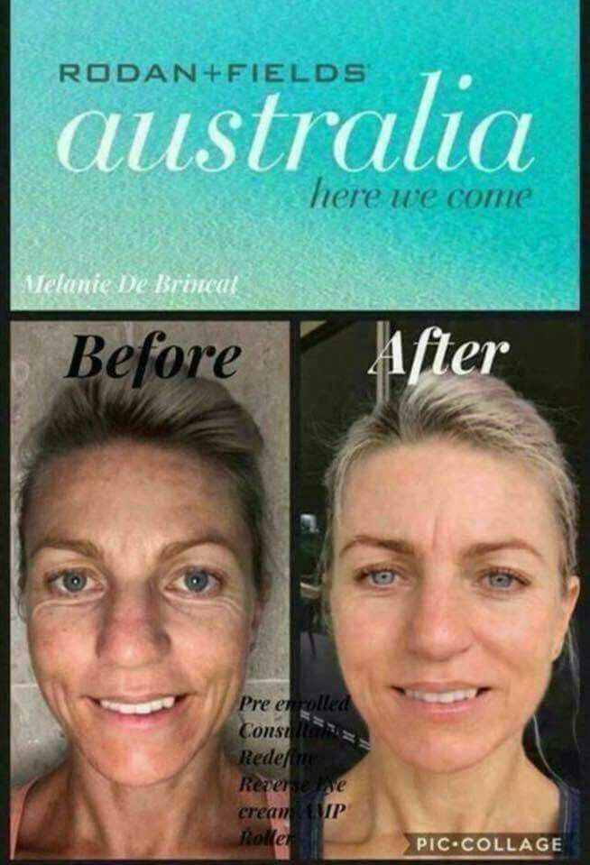 ATTENTION my friends in Australia OMGsh...this is so exciting!! Rodan+Fields is launching in Australia THIS month and we already have mind-blowing testimonies from customers who got a jump start on these products! Do you want to JOIN the skincare movement too? Check out information at my website below⬇ ksnodgrass1.myrandf.com