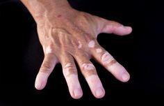 11 techniques pour réduire l'apparence du vitiligo