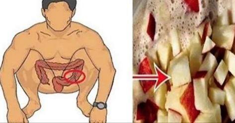 Ha nem ettél mindig egészségesen, a vastagbeled igencsak igényelheti a méregtelenítést, béltisztítást.    Természetes és házilag elkészí...