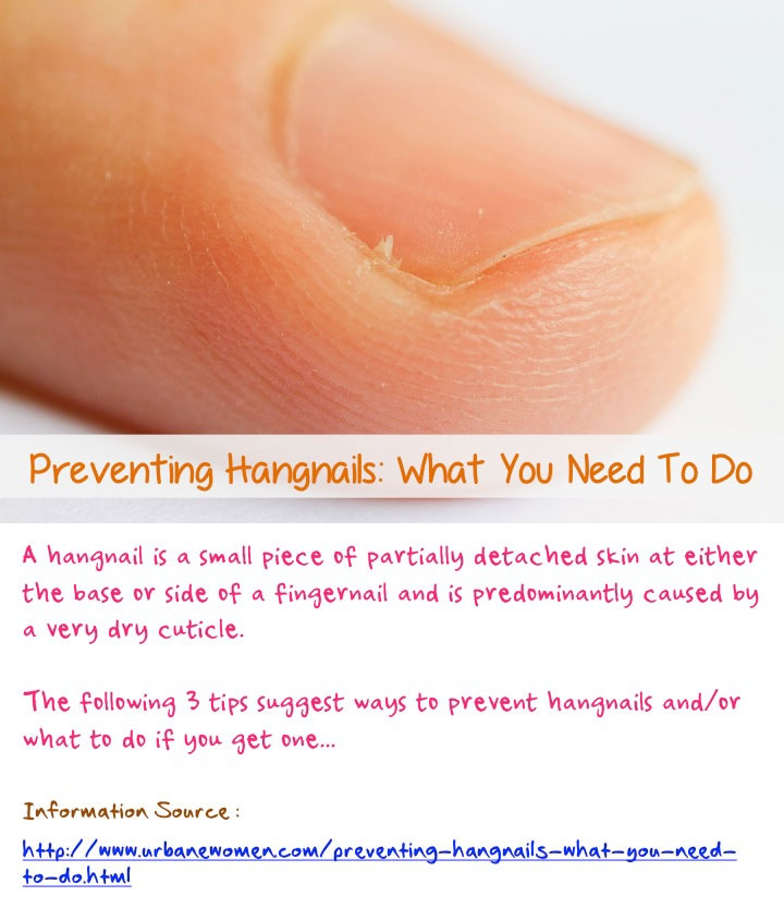 Preventing hangnails: What you need to do - A hangnail is a small piece of partially detached skin at either the base or side of a fingernail and is predominantly caused by a very dry cuticle. The following 3 tips suggest ways to prevent hangnails and/or what to do if you get one... Source: http://www.urbanewomen.com/preventing-hangnails-what-you-need-to-do.html