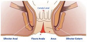 Do anal fissures itch