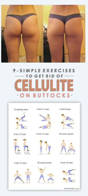 Cellulite-Reduktion – Anti-cellulite