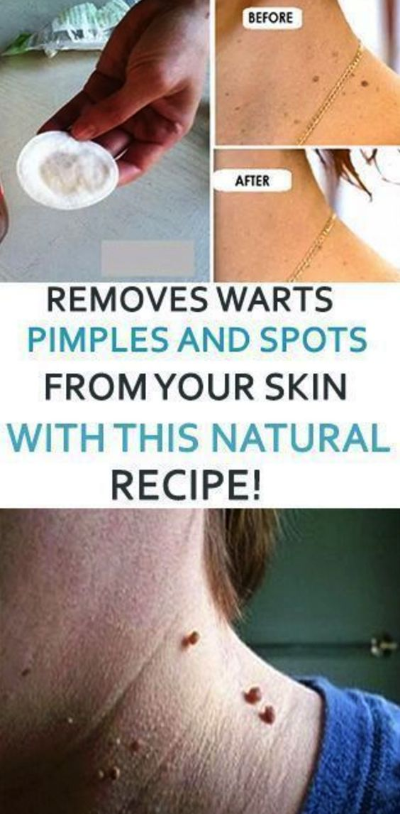 Skin issues, for example, warts and pimples are a portion of the fundamental excellence worries of numerous ladies on the planet. They are ...