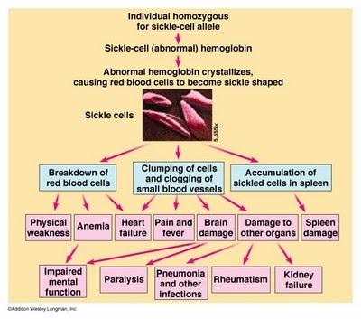 sickle cell anemia case study nursing Nursing case study - interventions for sickle cell anemia treatment.
