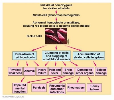 analysis of sickle cell disease The sickle cell trait is passed down through families learn how you inherited this  trait and how it differs from sickle cell disease.
