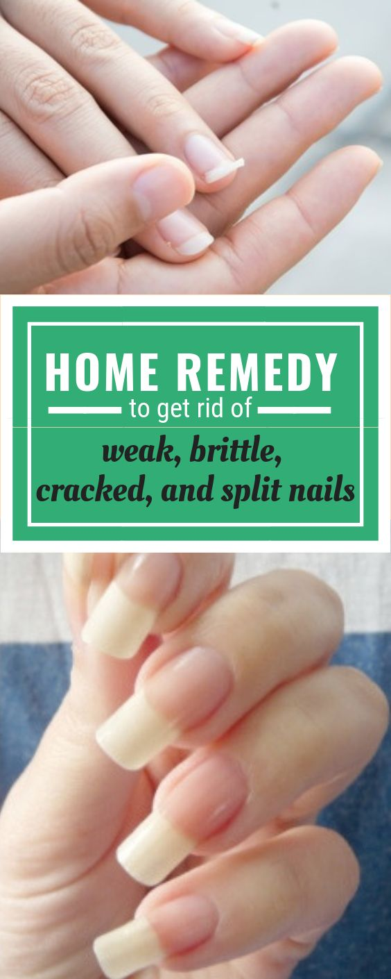 Best Home Remedy To Get Rid Of Weak, Brittle, Cracked And Split Nails #homeremed…