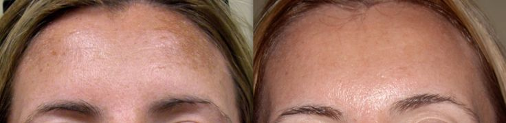 IPL Photorejuvenation can be used to remove colour from the skin, making it a perfect option for treating hyperpigmented, sun damaged skin. https://cosmedicalskinsolutions.com.au/treatments/skin-rejuvenation/ipl-photo-rejuvenation/