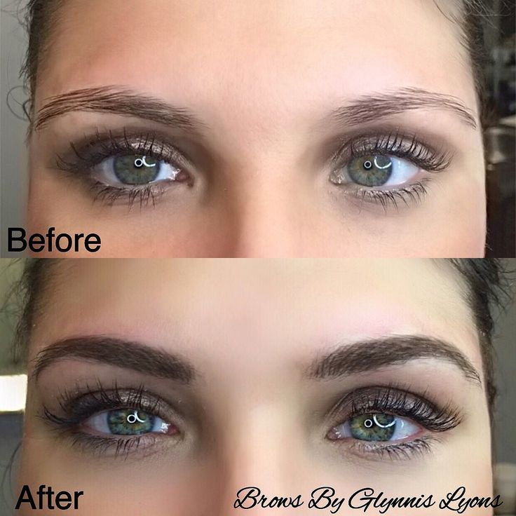 Feathered Hair Stroke Brows✍️ Treatment: Micro Pigmentation and Microblading Purpose: Camouflage missing eyebrow hair with the appearance of simulated hair using cosmetic pigment Phone: 916•842•1270 Location: Pavilions Shopping Center Sacramento/✈️Traveling Esthetician in Los Angeles Technique: Implanting pigment after the creation of fine incisions in the skin