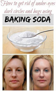 How to get rid of under-eyes dark circles and bags using baking soda:
