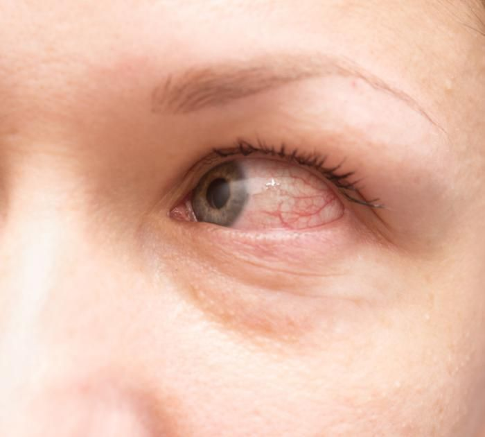 Red eye can be a symptom of allergic conjunctivitis Read more in natureandhealth…Healthy Living by Anna | Recipes, Fitness, Diets, etc.