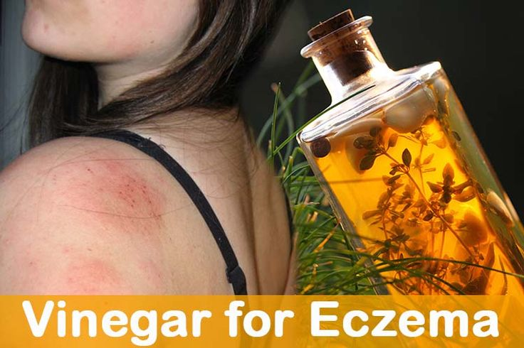 Here is the top list of various home remedies for eczema treatment using apple cider vinegar and white vinegar. Vinegar helps to get relief from itching.