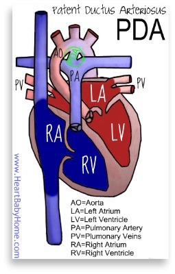 Patent Ductus Arteriosus (PDA) | HeartBabyHome
