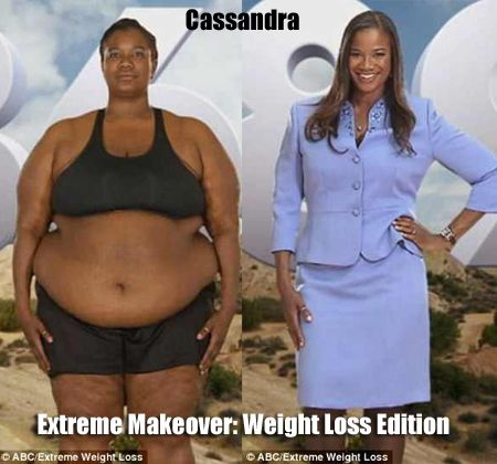 Extreme Makeover Weight Loss