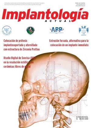 Desde hace 30 años, el Dr. José Luis Molina Moguel, quien es Cirujano Maxilofacial y fue Jefe de Cirugía Maxilofacial en el Centro Médico Na...