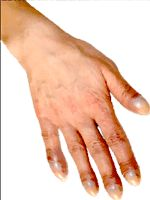 Signs of heart disease: cyanosis, edema, clubbing of fingers, palpation, murmur, Argyll Robertson's pupils, splenomegaly, diffuse goiter, big kidney...