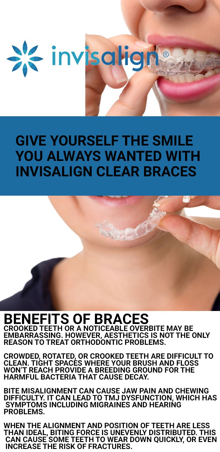 Mejores 48 imgenes de orthodontics en pinterest orthodontic treatment at sensational smiles in carshalton is tailored to your specific expectations multiple options solutioingenieria Image collections