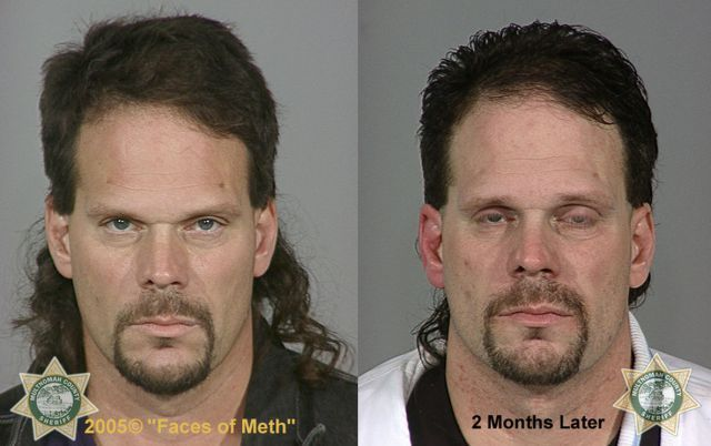 Faces Of Drug Addicts