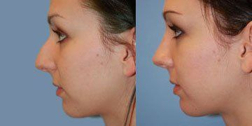 Septoplasty Before & After Pictures