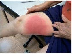 tratamiento celulitis infecciosa