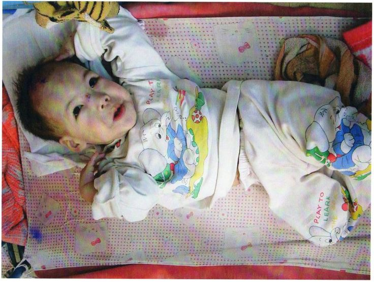 Baby Linda who has epilepsy and cerebral palsy laying in what is literally called a DYING ROOM in China. Again, if you donate, we can SAVE these children. One may become my friend Daria's daughter .