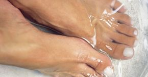 Remedio casero de vinagre para los talones. Los espolones del talón son protuberancias óseas, con forma de gancho en la parte posterior del talón. Éstos pueden ser el resultado de una lesión a la banda de tejido conectivo que se extiende a través de la parte posterior del talón. La lesión proporciona espacio para los depósitos de calcio que se acumulan y crean las espuelas. Los espolones ...