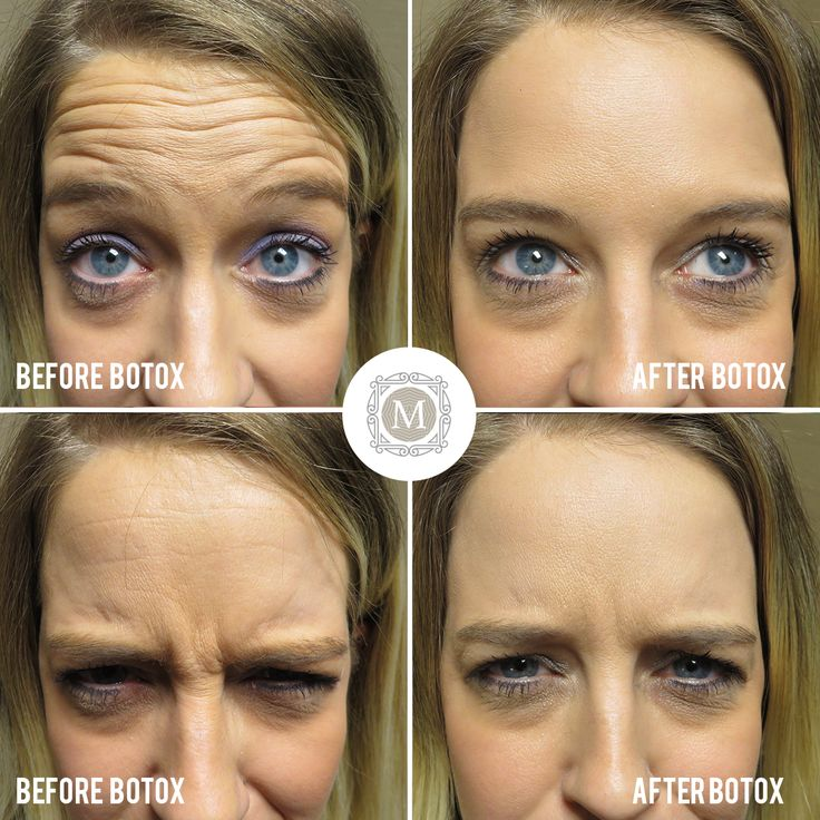 This Patient Had 20 Units Of Botox For Forehead Wrinkles