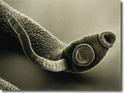 Dr. Clark found that all her patients suffering with weight-related health issues were typically infected with a long list of the SAME types of parasites.