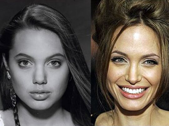 Angelina Jolie-named most beautiful women AFTER loads of plastic surgery.