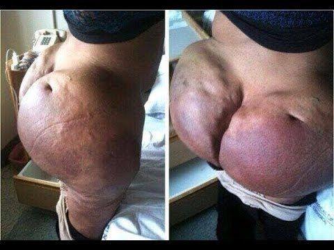 Biogel Butt Injections