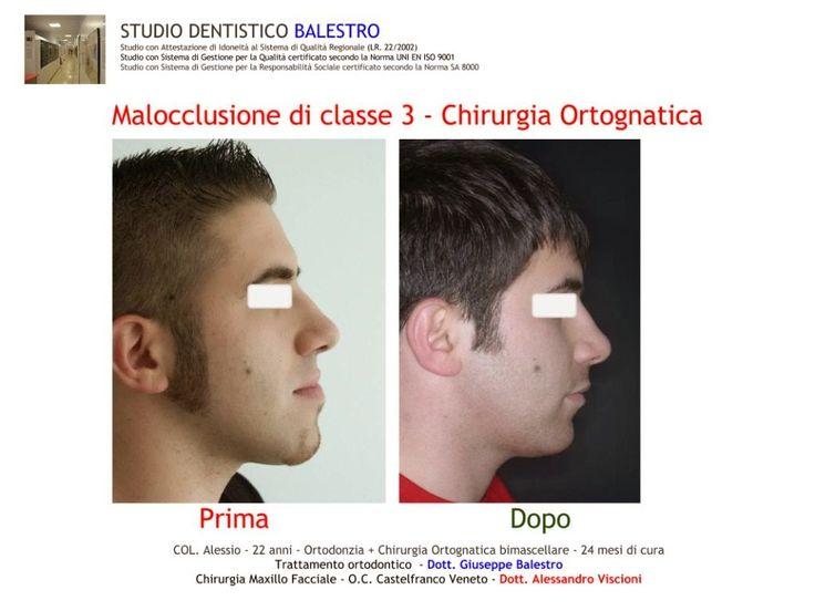 STUDIO DENTISTICO BALESTRO: Chirurgia ortognatica