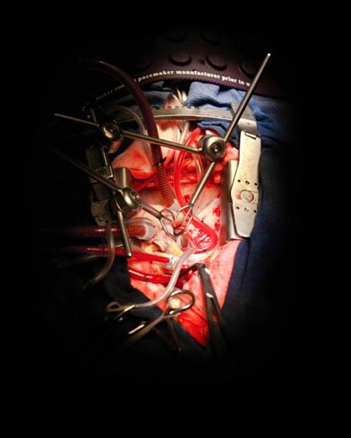 Sorry but this is awesome. Open heart surgery.