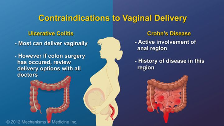 Currently, the only contraindication to vaginal delivery is active involvement of the anal region due to Crohn's disease or a previous history of severe disease in that area. Most ulcerative colitis patients can deliver vaginally, but after colectomy, the preferred mode of delivery should be reviewed with the surgeon, obstetrician and gastroenterologist.slide show: optimizing pregnancy outcomes with ibd. this slideshow describes issues females with ibd should consider before getting…