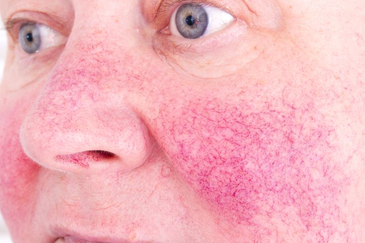 Rosacea is a chronic skin condition causing persistent redness of the facial skin. Learn about risk factors, triggers and treatments.