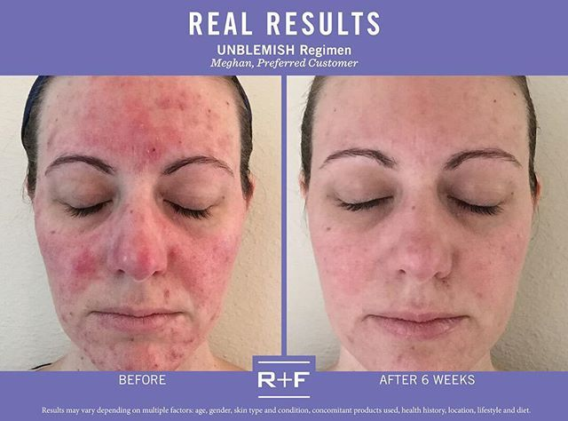 """""""Before using Rodan + Fields, I had to wear heavy layers of makeup to hide blemishes and redness and would never think of leaving my home without it. After just one week, I noticed a big improvement in my skin. After just 6 weeks, my skin is calm and almost completely clear. These products have been completely #lifechanging."""" –R + F PC, Meghan Roberts. """"Double tap"""" if the #UNBLEMISHRegimen has helped you #RFBreakTheCycle."""