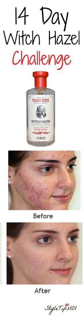 14 Day Witch Hazel Challenge