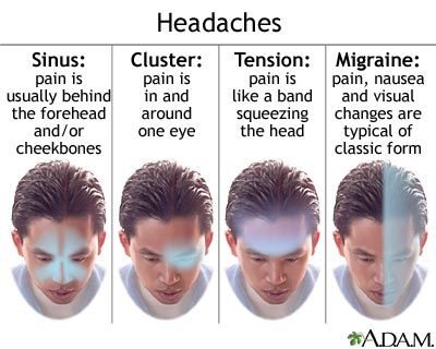 Huh. I apparently get a lot of cluster headaches. Who knew.  Headache Types: Types of Headaches - A Visual Description
