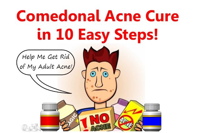 Comedonal acne treatments