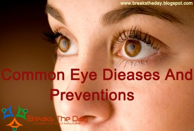 Common Eye Diseases And Preventions