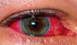 Uveitis adalah peradangan pada uvea. Uvea (disebut juga saluran uvea) terdiri dari 3 struktur yaitu iris, badan silier dan koroid. Pengobatan harus segera
