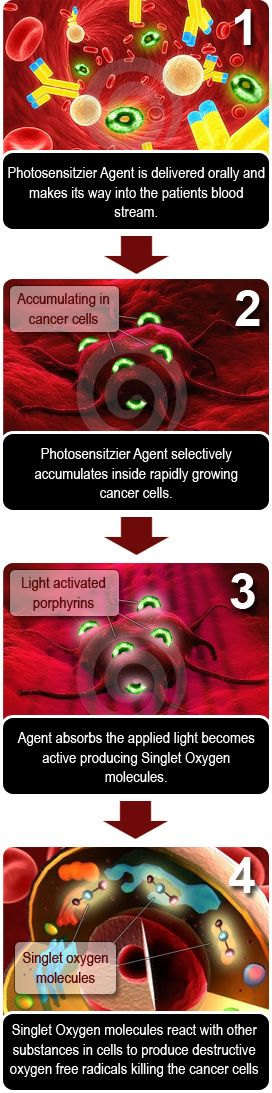 How NGPDT Works to treat all cancer types