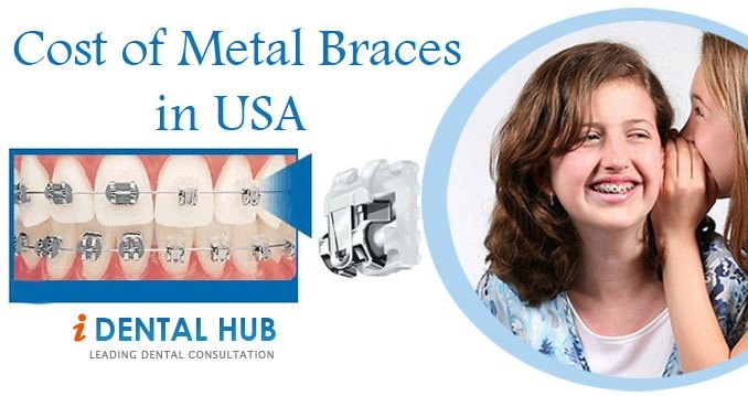 Traditionally, one always used metal braces and the outcome of these metal braces has always been positive. However, with advancement in the field of orthodontics there are braces that are made of different materials too such as ceramic.