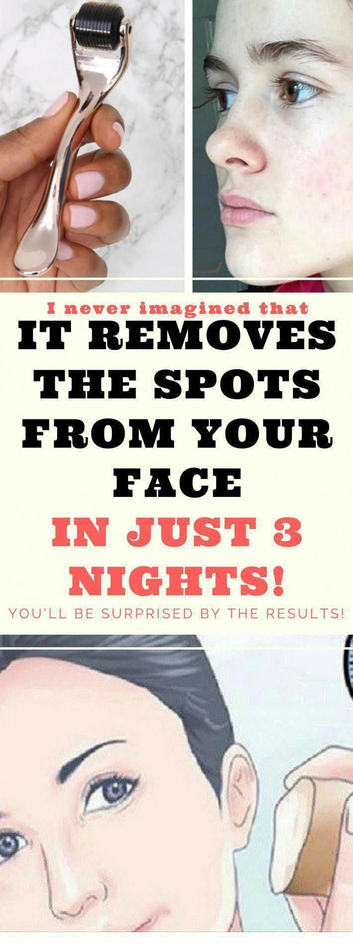 How to Get rid of Brown Spots on Facial area The natural