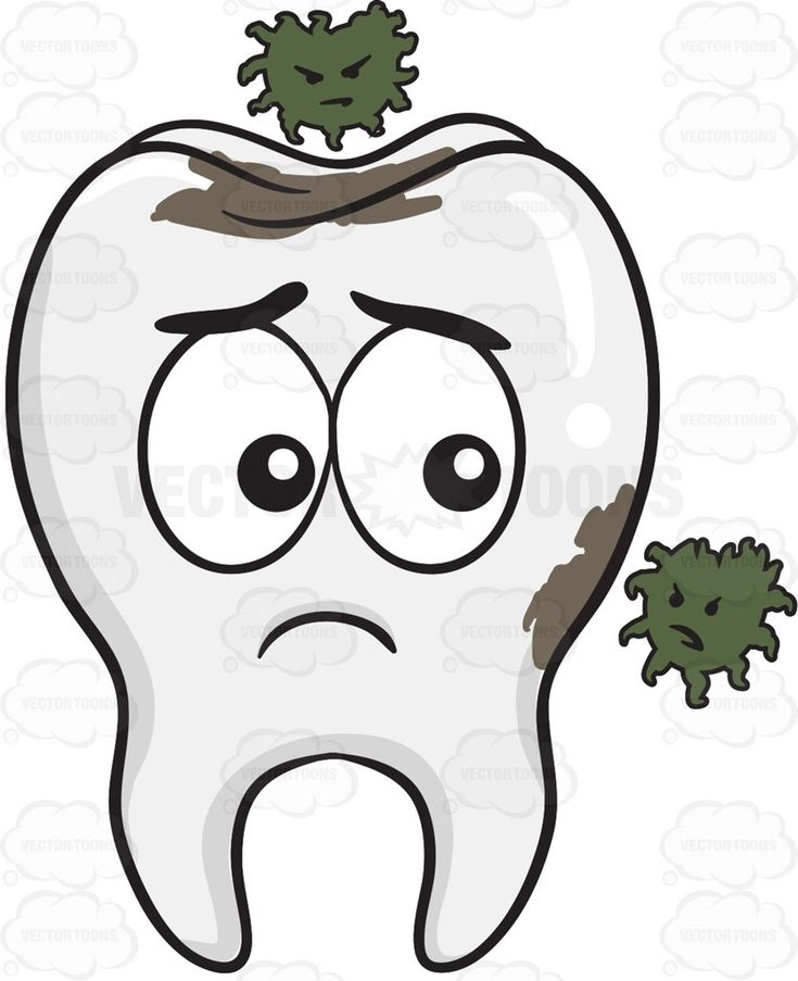 Tooth Being Infested By Germs #alone #anatomicalstructure #bacteria #bodilystructure #bodystructure #bone #bonestructure #calcified #calcium #chew #chewdownfood #chewing #clinic #complexbodypart #dentist #dentures #fluoride #germs #gingivitis #hardtissues #lonesome #mouth #multipletissues #plaque #sad #sadness #singletooth #teeth #tooth #toothwhitening #white #whitestructure #whitening #vector #clipart #stock